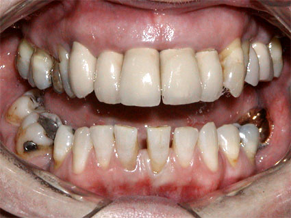 Longer, yellow teeth with arch going inside after the canine. In lowers black fillings and space in the front teeth.