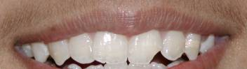 Before Fractured tooth after bonding, No Crowns