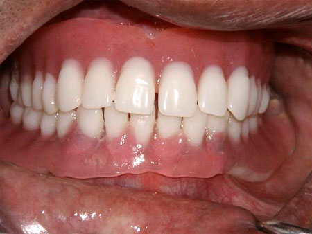 Fixed Denture as a look in mouth.