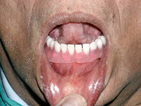 Denture snaps on the implants, upward movement of the tongue, denture does not move.