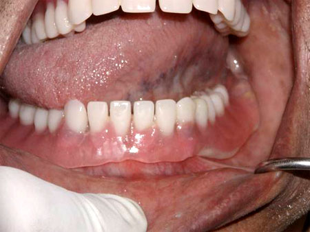Right full movement of tongue, denture does not move.