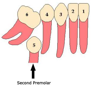 The Second Premolar is trapped now