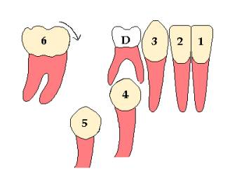 Because of open space the first permanent molar will start tilting forward