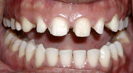 Only minor preparation about 0.5mm on facial surfaces is done to seat porcelain veneers.