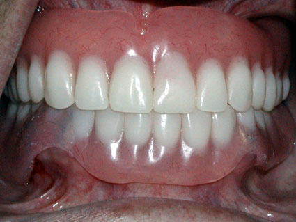 The denture snaps on the crowns in the mouth and holds it tight