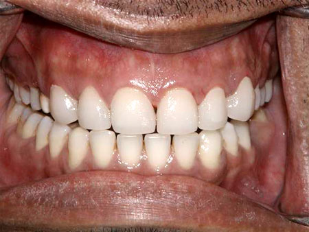 Porcelain veneers after fixation.
