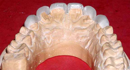 Porcelain veneers with back (lingual) view, the lingual surface is not covered.