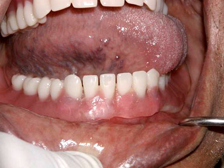 Left full movement of tongue, denture does not move.