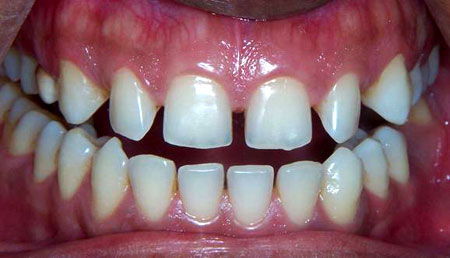 Ugly spaces are present between the front teeth they can be corrected by giving simple porcelain veneers.