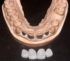 Inside of Veneers (There is no metal & it has only the outer surface of teeth)
