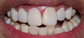 After Composite Veneers in all front teeth